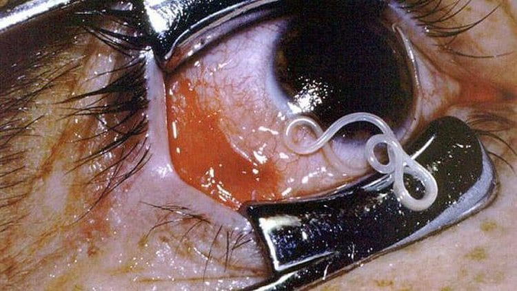Most scary diseases: Filarial worm
