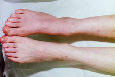 most scary diseases:Complex Regional Pain Syndrome