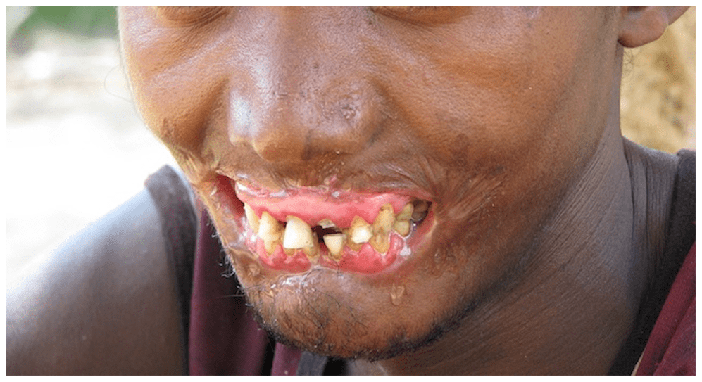 most scary diseases: noma